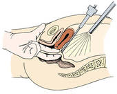 Laparoskopia