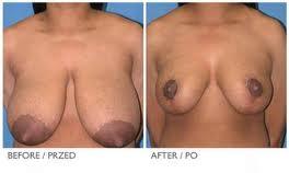zmniejszanie piersi