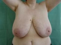 Pomniejszanie piersi