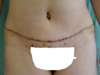 Plastyka brzucha