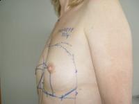 Modelowanie piersi