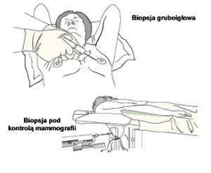 biopsja